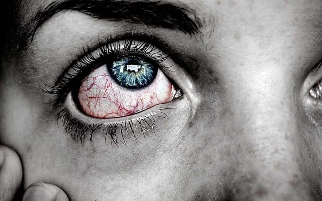 Ojos rojos e irritados… ¿Ojo seco?